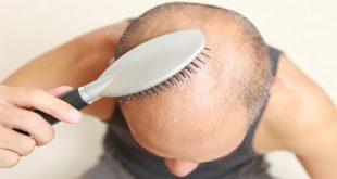 أسعار زراعة الشعر في مصر
